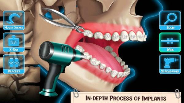 医生修个牙